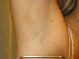 After VPL Laser hair removal treatment