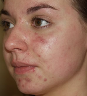 Acne before VPL laser treatment