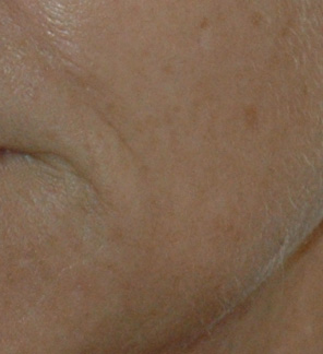 Before VPL skin rejuvenation