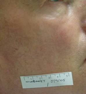 treatment facial thread for vein Laser