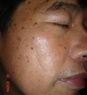 Sun damage pigmentation before VPL laser treatment